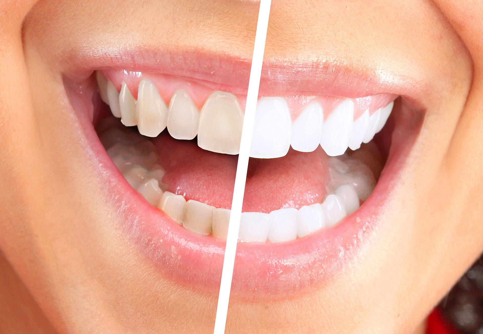 Teeth Whitening In Tauranga Get White Teeth Corson Dental